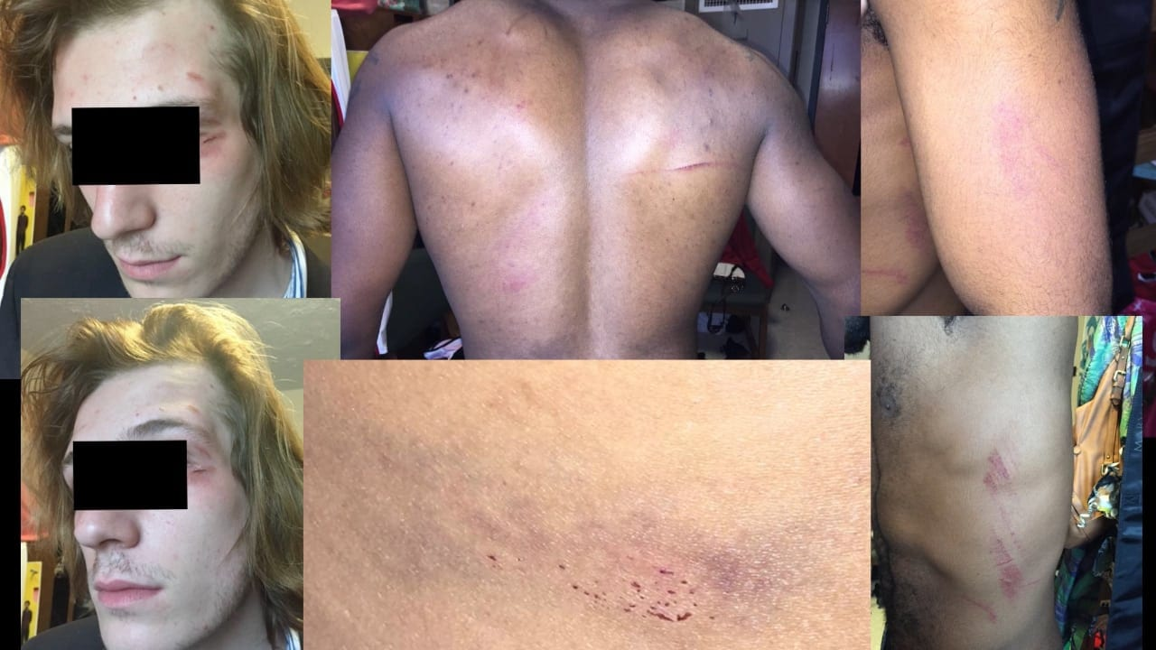 21-year-old jumped by six guys and is facing police charges